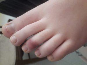 Foto 1_ vertoning van huidproblemen aan de tenen bij een 13-jarige jongen voordat een test op het cononavirus heeft plaatsgevonden.