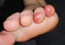 Foto 3_vertoning van huidproblemen aan de tenen bij een 13-jarige jongen voordat een test op het cononavirus heeft plaatsgevonden.